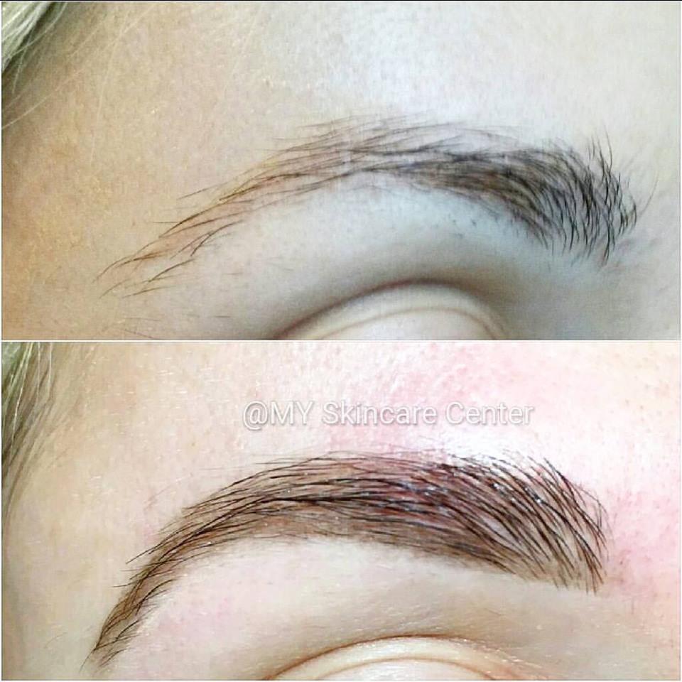 Eyebrow Shaping before & after