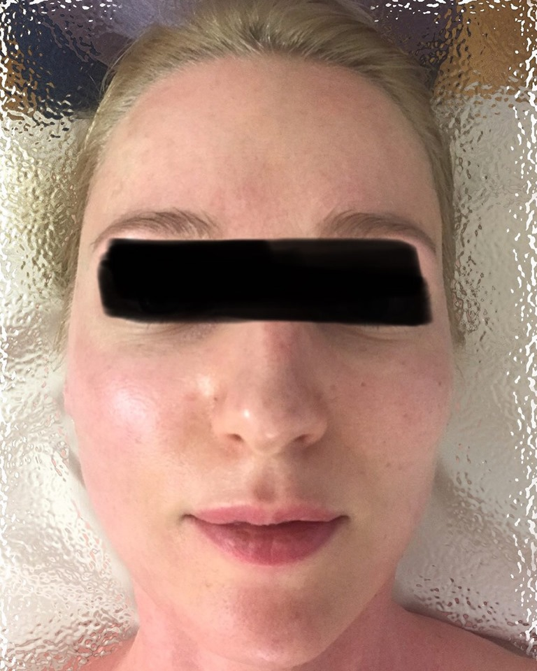 Gua Sha Anti-aging Facial  before & after