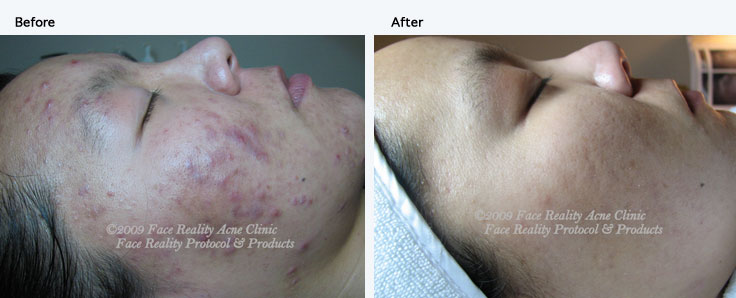 inflamed_acne_hyperpigmentation