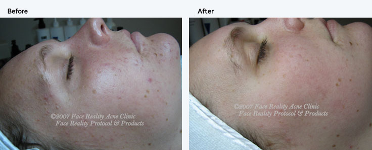 noninflamed_acne