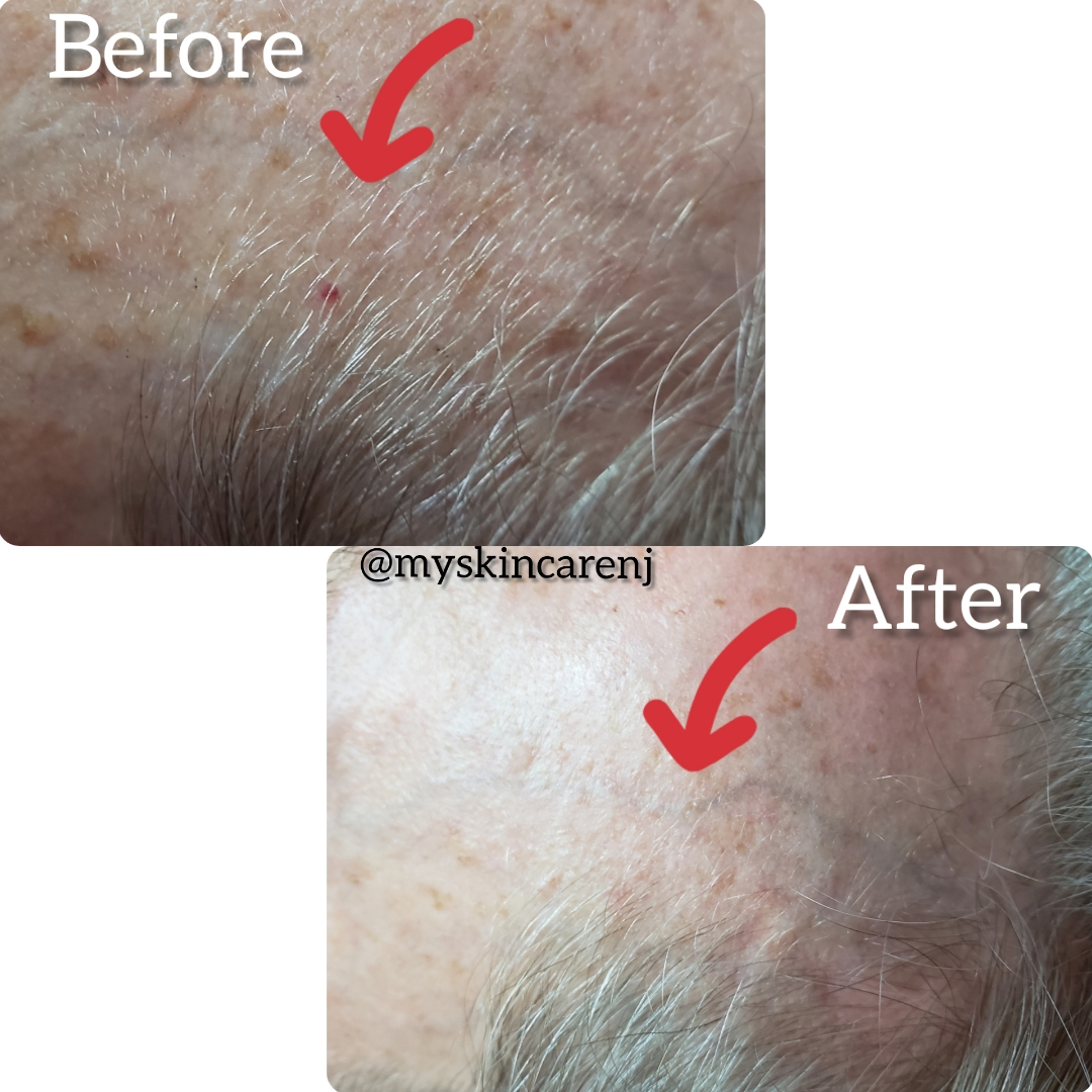 skin tag angiomas before & after