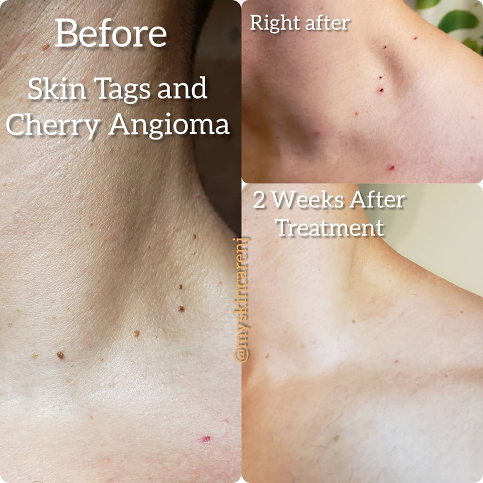 cherry angiomas before & after